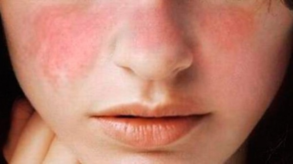 Ultimos Avances en Ciencia y Salud - Página 14 Rostro-mujer-con-lupus