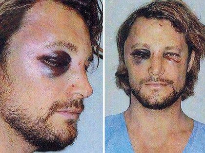 La cara de Gabriel Aubry después de la pelea contra Oliver Martinez (Foto: DailyMail)