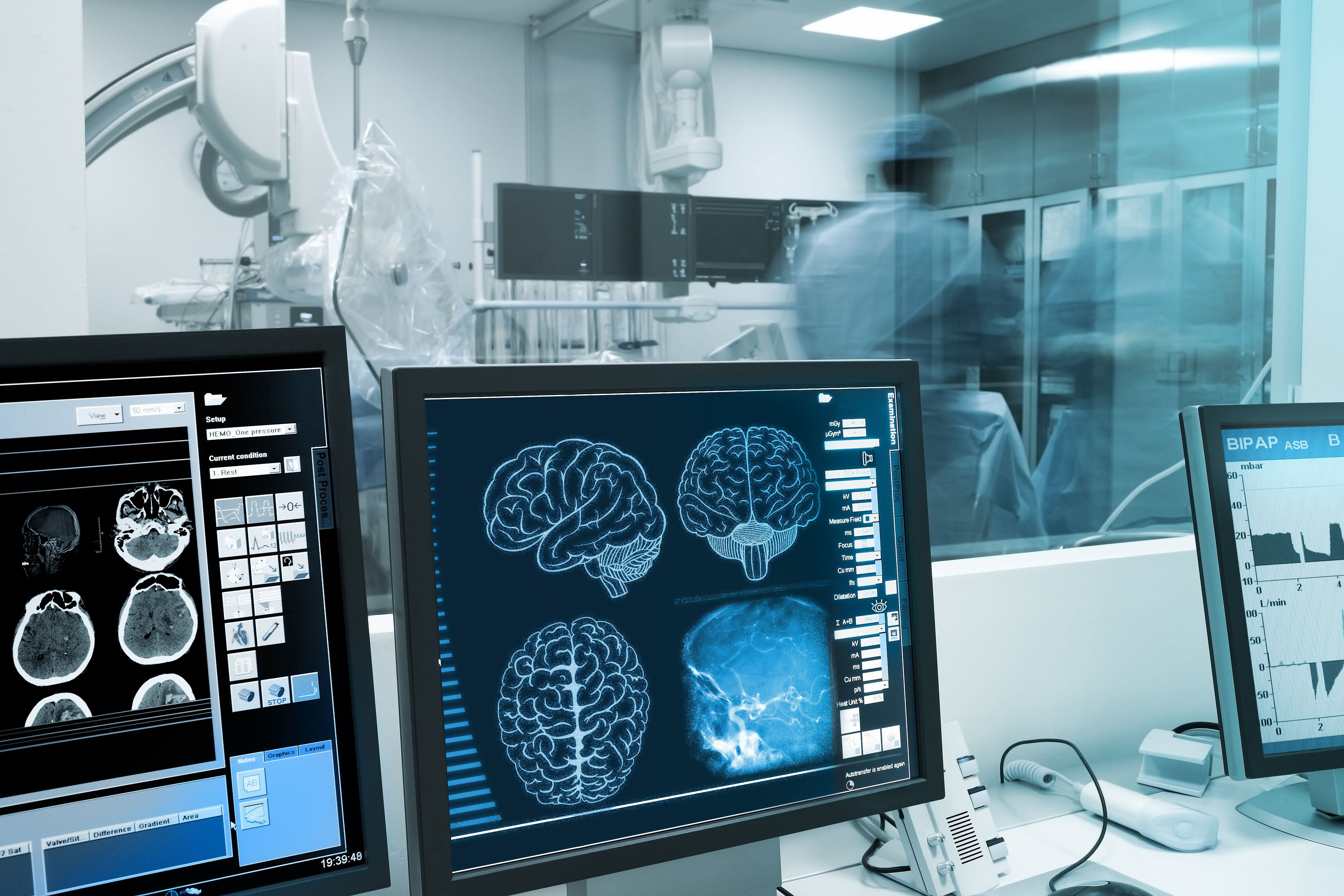 El Parkinson es la segunda enfermedad neurodegenerativa más frecuente luego del Mal de Alzheimer (Shutterstock)