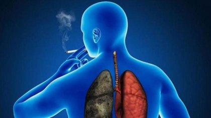 El tabaco sin humo (en forma de productos de tabaco orales, tabaco de mascar o en polvo) provoca cáncer de boca, esófago y páncreas (Getty)