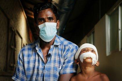 Abu Siddik es del estado de Rakhine en Myanmar. Aquí, está en el hospital de MSF en Kutupalong con su hijo de cinco años, Rashid Ullah (Hasnat Sohan /MSF)