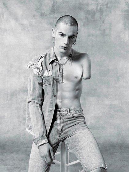 Luc Bruyère es modelo y actor y nació sin su brazo izquierdo