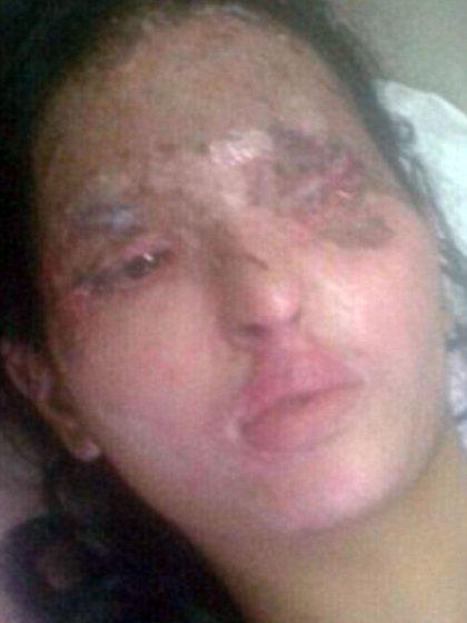 Así quedó el rostro de Reshma Qureshi luego del salvaje ataque con ácido de 2014 hecho por una banda de hombres
