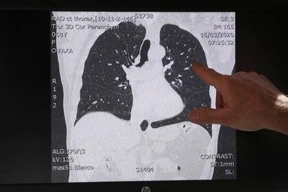 Una imagen de tomografía computada muestra los pulmones de un paciente que padece de COVID-19. (REUTERS/Yves Herman)