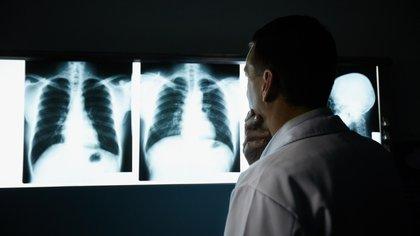La EPOC se caracteriza por la dificultad del paso de aire por los bronquios y provoca habitualmente síntomas como ahogo al caminar (Shutterstock.com)