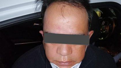 Detuvieron a sujeto que arrojó ácido en la cara a su expareja en Edomex