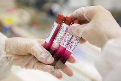Un tratamiento innovador desarrollado por un equipo israelí podría ofrecer una cura contra este tipo de cáncer de la sangre (Shutterstock)