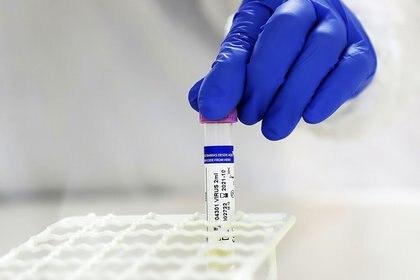 16/06/2020 Procesadr de muestras de coronavirus en Chile POLITICA SUDAMÉRICA INTERNACIONAL CHILE AGENCIA UNO/ CDUARTE