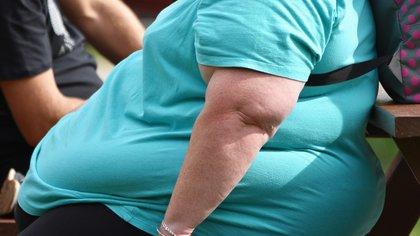 La obesidad se trata de una enfermedad crónica relacionada con más de 200 enfermedades