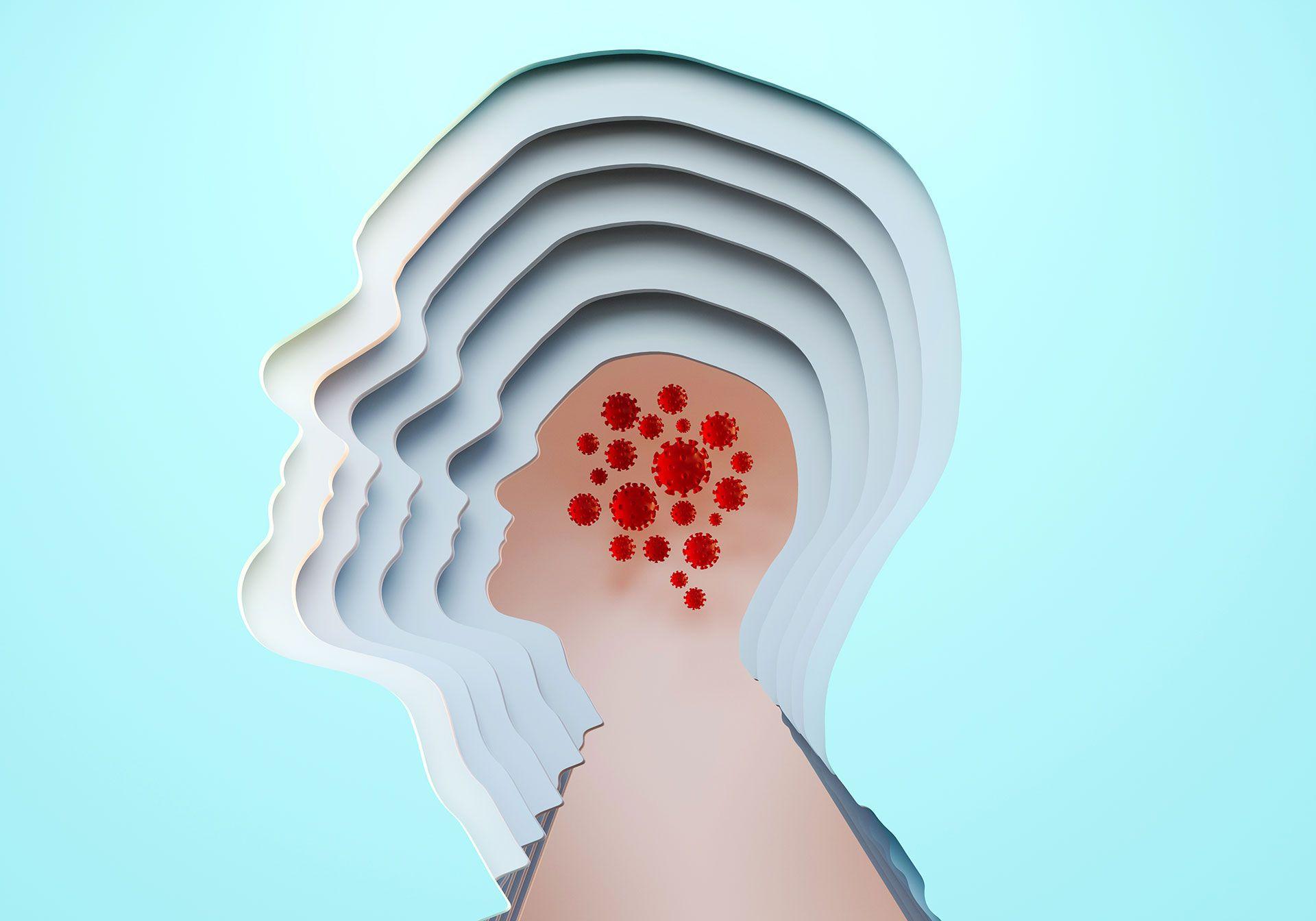 Cerebro COVID-19