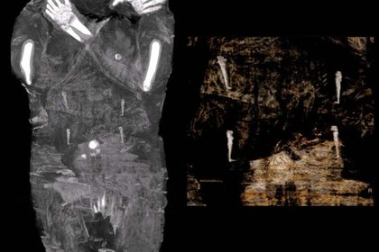 Las imágenes de rayos X de la momia egipcia embarazada fueron tomadas en 2015 en un centro médico en Otwock cerca de Varsovia, Polonia (AFP)