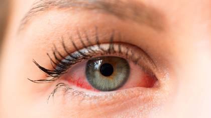 Si bien el porcentaje de casos que presentan este síntoma no es alto, cobra fuerza el consejo de no tocarse la cara, particularmente la boca, la nariz y los ojos (Shutterstock)