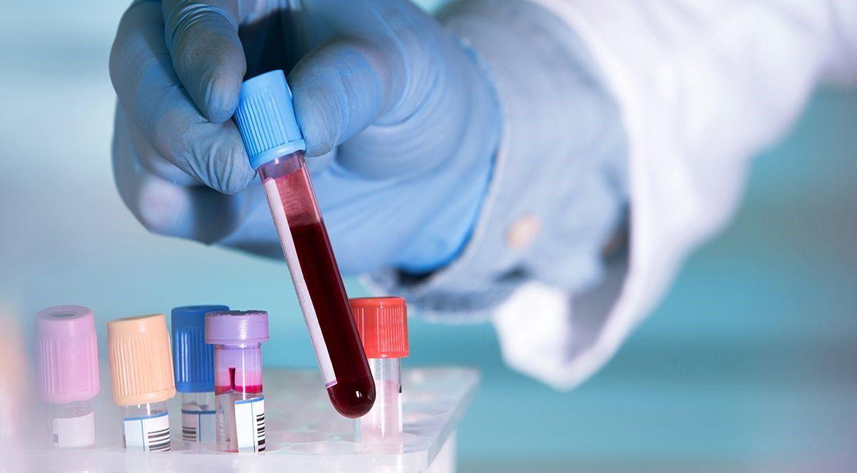 15/05/2020 Un simple análisis de sangre basta para detectar positividad por EUROPA ESPAÑA SALUD BLUEBERRY DIAGNOSTICS