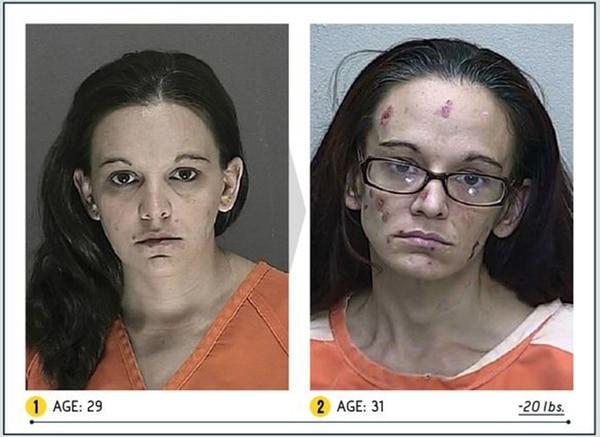 Las fotos más impactantes del flagelo de la epidemia de la heroína en los Estados Unidos