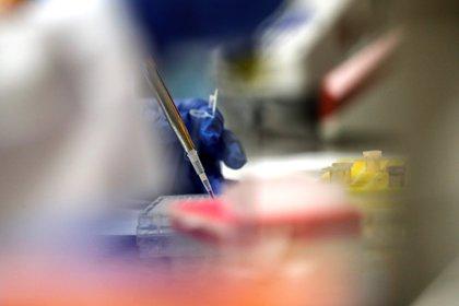 La Universidad de Oxford está en carrera para producir una vacuna que contrarreste al nuevo coronavirus SARS-CoV-2 (Foto: EFE/Javier Etxezarreta/Archivo)