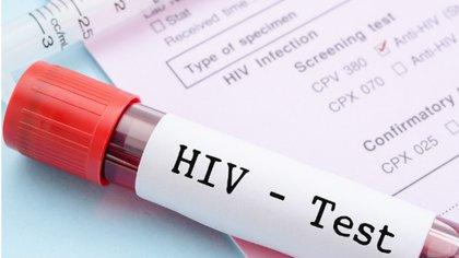 Los esfuerzos por llegar a una cura del virus de VIH necesita de mayor apoyo económico