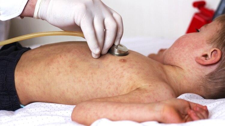 El mayor número de casos confirmados de sarampión corresponden a menores de 1 año de edad (Shutterstock)