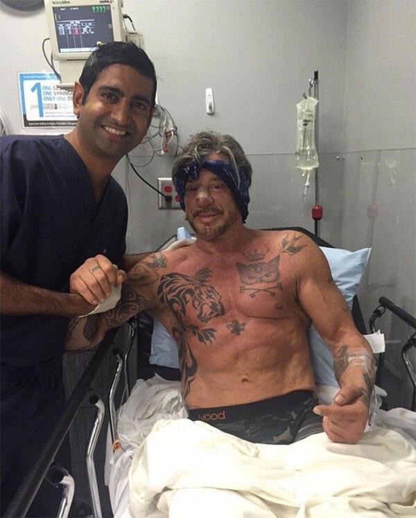 Mickey Rourke tras una nueva cirugía estética