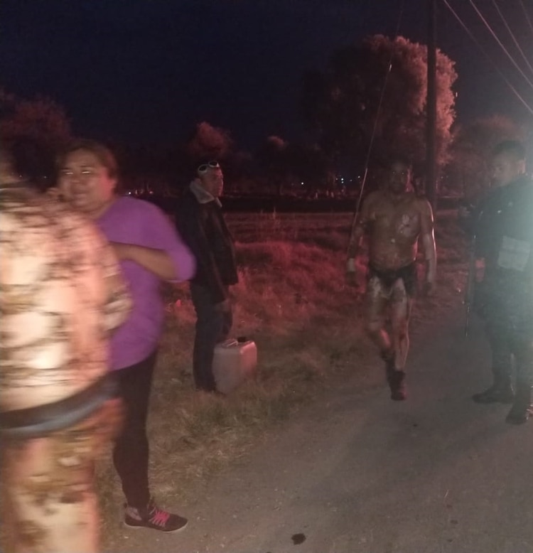 Varias personas lograron escapar del fuego, pero no de las quemaduras en su piel (FOTO: CORTESÍA /CUARTOSCURO.COM)