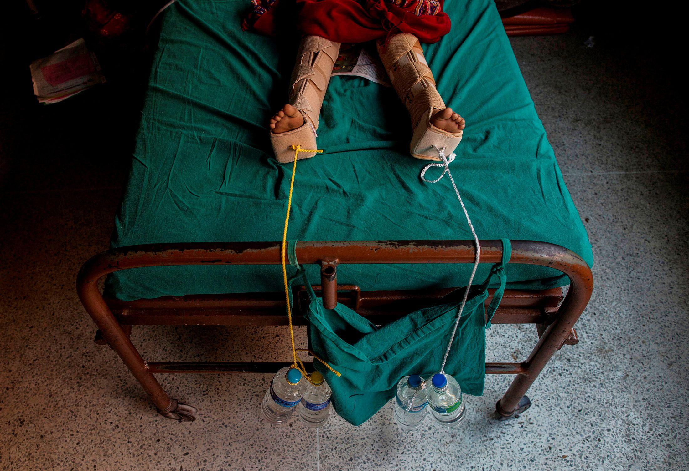 Cuerdas lastradas con botellas de agua se utilizan para aplicar tracción a las piernas de una niña herida tras fracturarse durante un terremoto en un hospital de Katmandú, Nepal, 29 de abril de 2015.