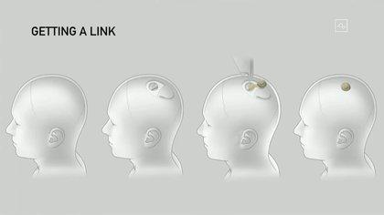 La idea es insertar un chip del tamaño de una moneda en el cerebro