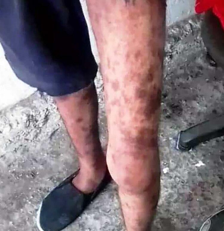Las piernas de uno de los presos