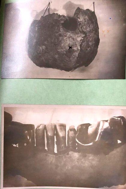 Fotos del cráneo de Hitler y un maxilar con restos de su dentadura fotografiados en la carpeta