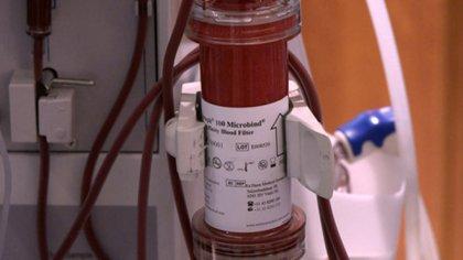 Este accesorio de la máquina de diálisis puede filtrar el coronavirus de la sangre de los pacientes