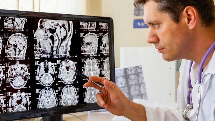 Resultado de imagen para envejecimiento del cerebro