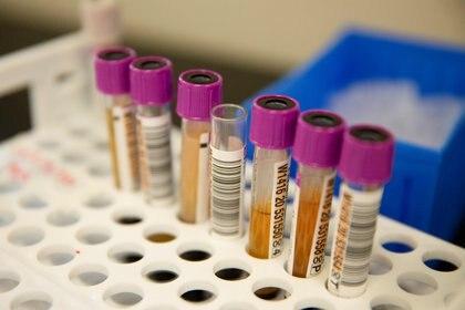 Los estudios surgen de la evolución de investigaciones previas sobre el ébola - REUTERS/Lindsey Wasson