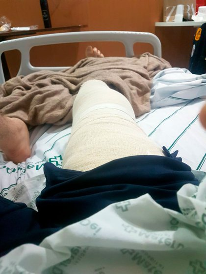 Adot en la clínica tras su operación