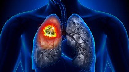 Paciente al que le descubrieron un nódulo en el pulmón (Shutterstock)
