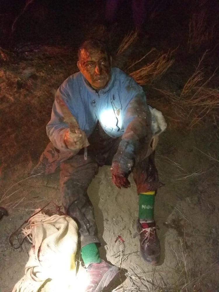 Así quedó Vicente Navarrete después de enfrentar a un puma