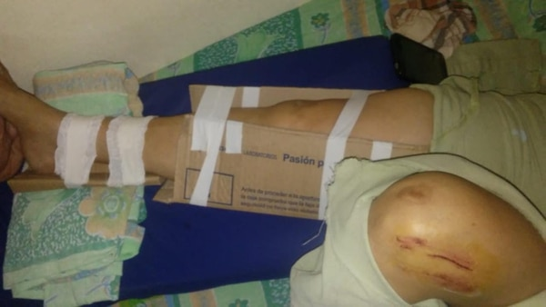 """Chaco: una mujer se fracturó la pierna y, como no había insumos, la """"enyesaron"""" con cintas y cartones"""