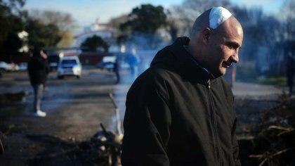 Uno de los heridos en la pelea de sectores enfrentados de la UTA en Mar del Plata