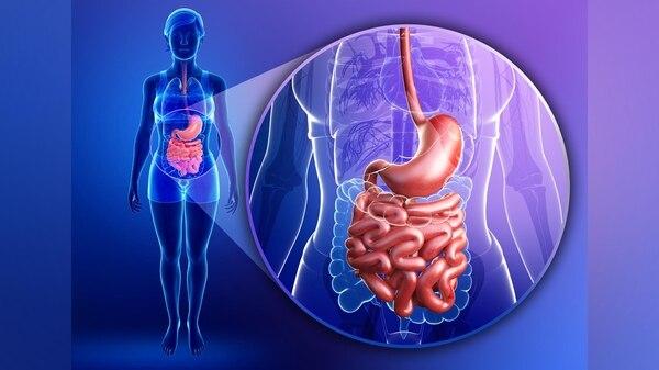 Tumor del estroma gastrointestinal: 8 síntomas para reconocer un mal ...