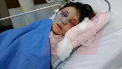 Belén Torres, la chica agredida en 2017 por el anestesista