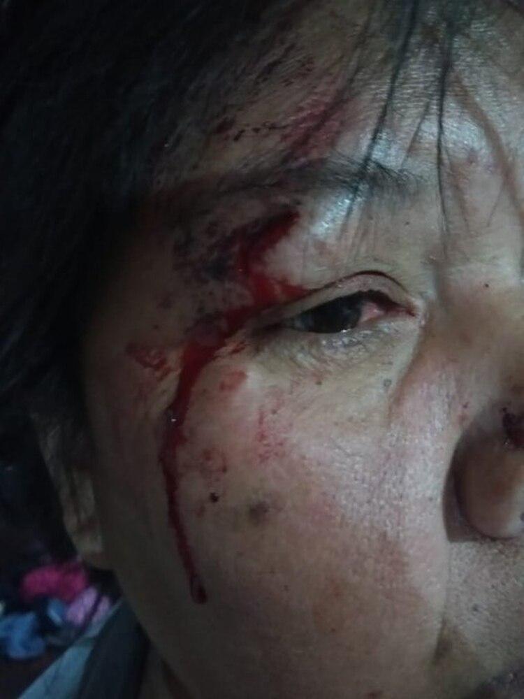 Una de las víctimas, herida en la cara.