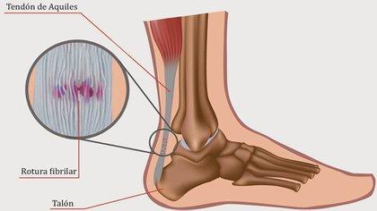 Un tendón doloroso que impedirá el trote normal