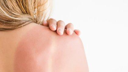 Las personas cuya piel se enrojece luego de una exposición solar tienen más predisposición a tener cáncer de piel (Shutterstock)