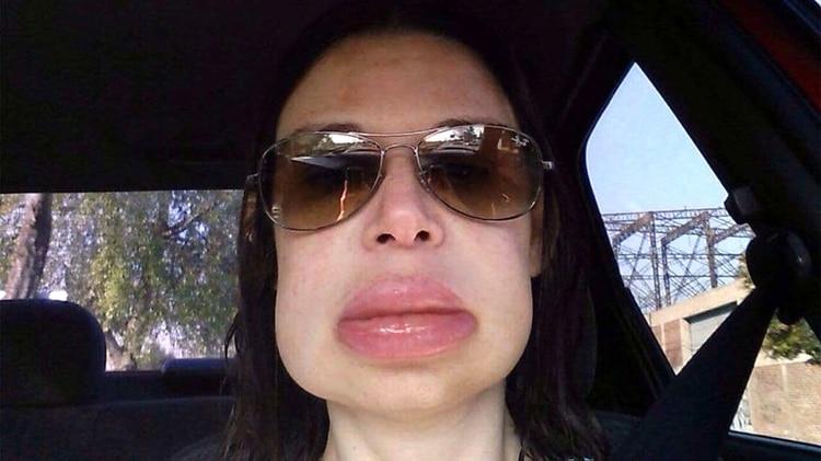 Así le queda el rostro a Fernanda cuando se le dispara la enfermedad: cachetes y labios completamente hinchados