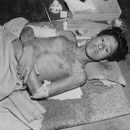 SENSITIVE MATERIAL. THIS IMAGE MAY OFFEND OR DISTURB: FILE PHOTO: A man being treated for wounds caused by the atomic bomb is seen in Nagasaki, Japan in an undated photograph. War Department/U.S. National Archives/Handout via REUTERS/File Photo ATTENTION EDITORS - THIS IMAGE HAS BEEN SUPPLIED BY A THIRD PARTY. PLEASE SEARCH