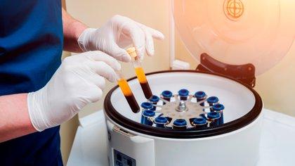 El plasma sirve para ayudar en el tratamiento a los enfermos de Covid 19 (Shutterstock)
