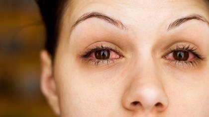 El tratamiento es el mismo que para cualquier conjuntivitis, no es un cuadro que revista gravedad para la vista (Shutterstock)