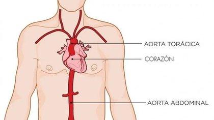 Adrián sufrió una disección aórtica, una patología cardíaca muy grave (Shutterstock)