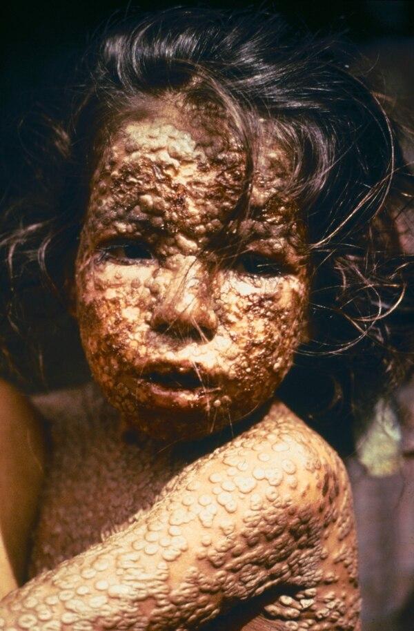 Una niña infectada con viruela en Bangladesh