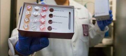 El dispositivo molecular denominado Sexually Transmited Infections (STI DIAGNOSTIC) se constituirá como una herramienta valiosa para los laboratorios ya que hará en seis horas lo que generalmente tarda un cultivo tradicional de 72 horas Foto: (IPN)