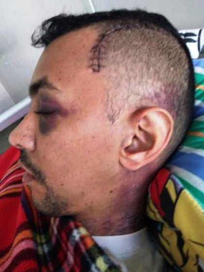 Luis Alejandro Mogollón Velásquez tras ser golpeado en la cabeza