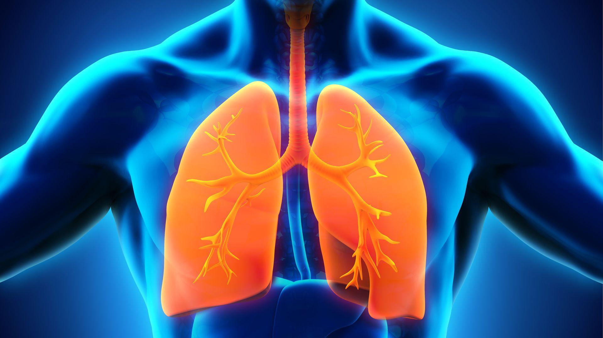 La bronquiolitis es una inflamación aguda y difusa del tracto respiratorio inferior (IRAB) causada por una infección de origen viral (Getty)