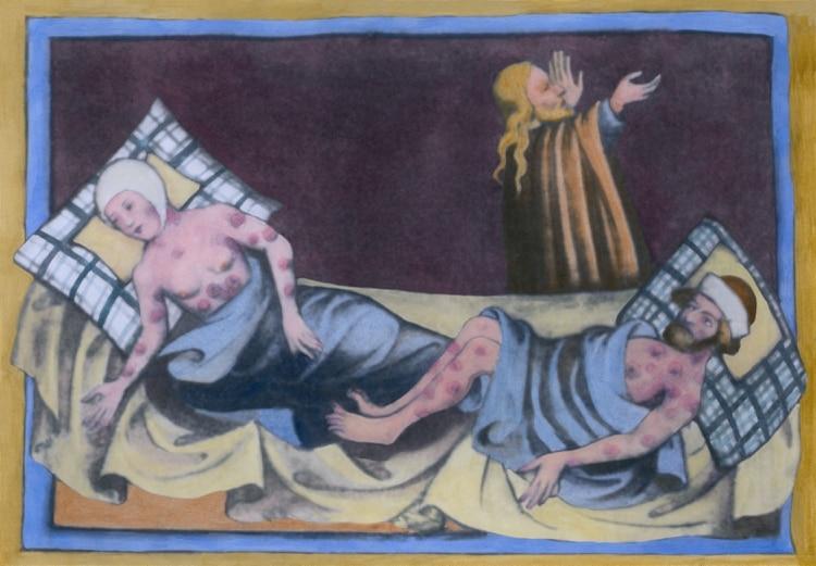 Un hombre y una mujer con la peste bubónica con sus características úlceras en sus cuerpos, en una pintura medieval de una Biblia de 1411 en Toggenburg, Suiza. (Foto: Shutterstock)